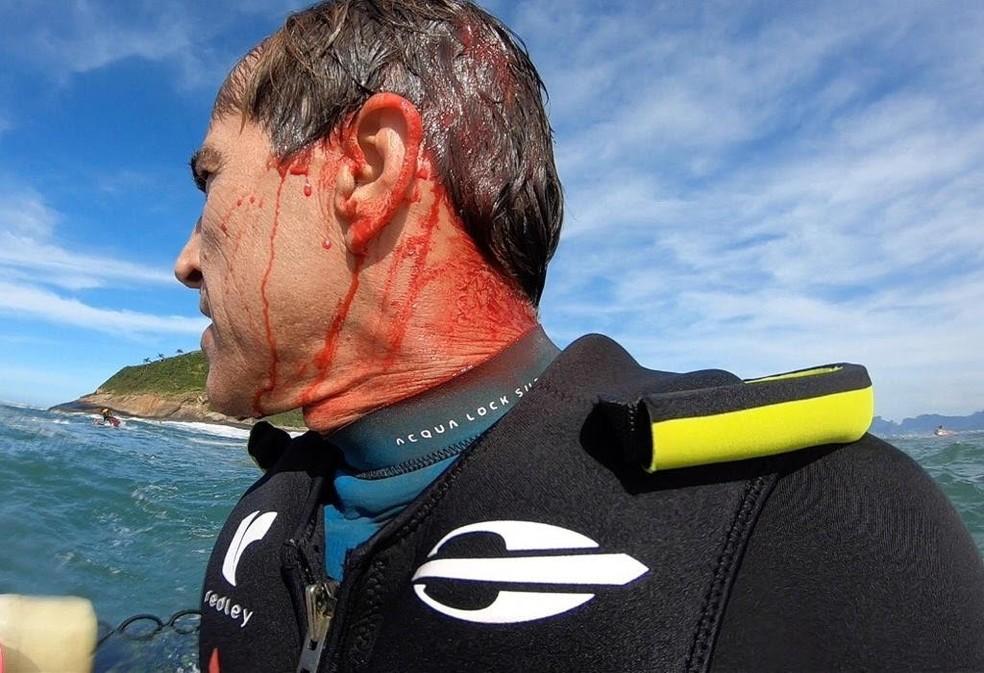 Carlos Burle após resgate na Baía de Guanabara — Foto: Reprodução