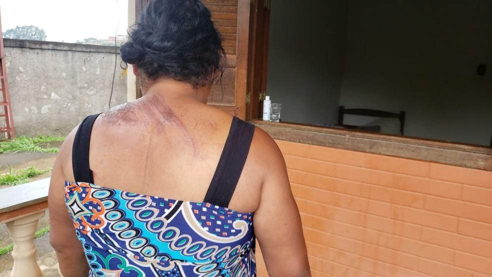 Ao pular de ônibus em João Monlevade, Solange machucou as costas — Foto: Vladimir Vilaça/TV Globo