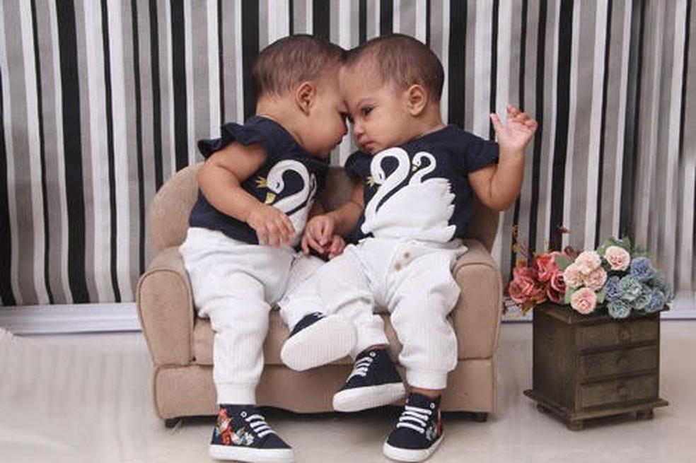 As gêmeas Mel e Lis foram separadas depois de quase 11 meses, em cirurgia inédita no DF — Foto: Acervo Pessoal