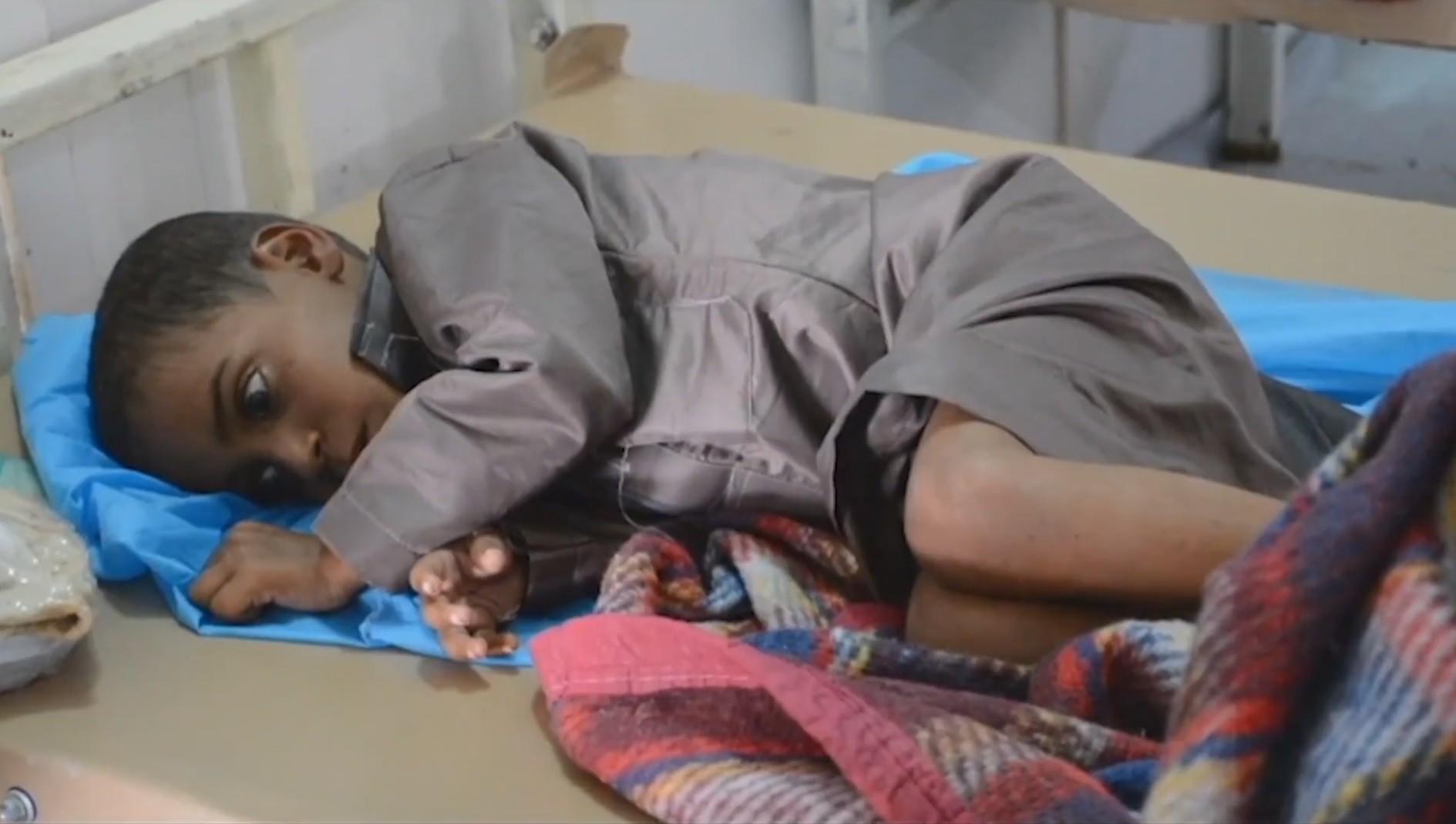 'Rostos vazios' pela cólera e restrições pela guerra: a rotina de um médico brasileiro no Iêmen