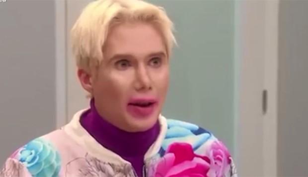Oli London pede nova cirurgia para ficar parecido com Jimin, do BTS (Foto: Reprodução/Instagram)