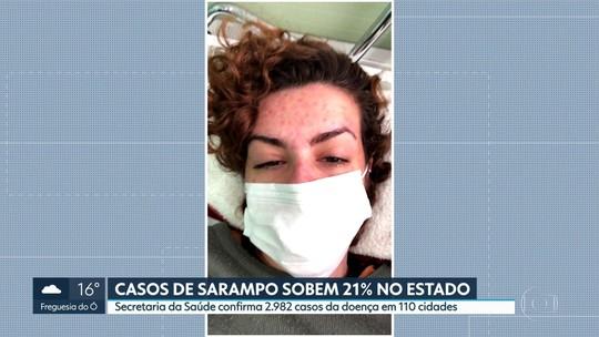 Casos confirmados de sarampo sobem 21% no Estado em uma semana