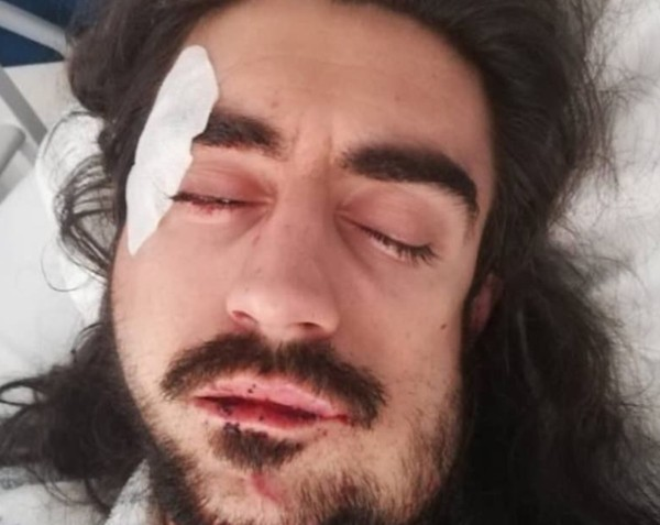 Ator português Diogo Fialho foi agredido em Lisboa e fraturou o maxilar (Foto: Reprodução/Instagram)