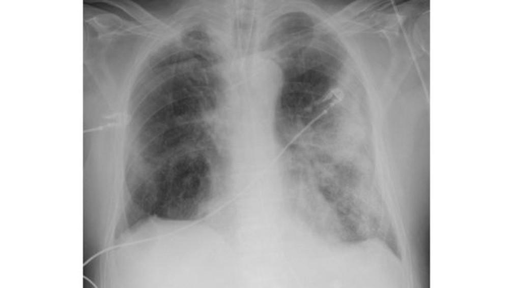 Raio-X de um homem de 68 anos mostra sintomas graves da Covid-19. As áreas brancas mostram a inflamação dos alvéolos, que provoca dificuldade de respiração — Foto: The Royal College of Radiologists/BBC
