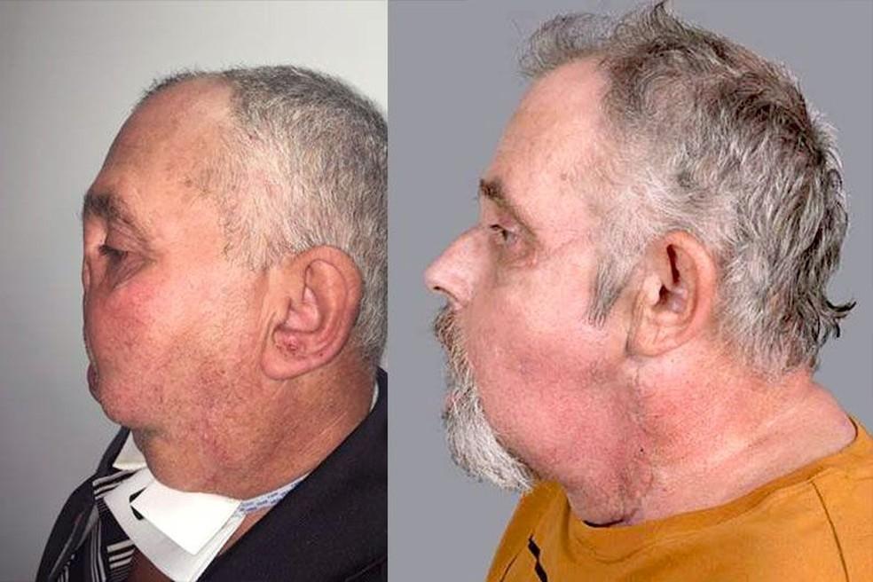 Homem passou por cirurgia de transplante de rosto após tiro acidental no Canadá — Foto: Universidade de Montreal