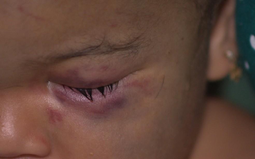 Bebê deu entrada em hospital com traumatismo craniano e hematomas no rosto (Foto: Reprodução/TV Paraíba)
