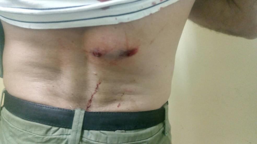 PM é baleado na Zona Sul de Natal  (Foto: PM/divulgação )