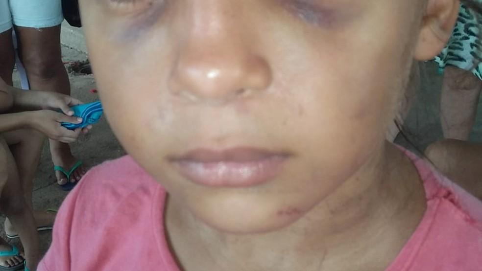 Em depoimento, criança relatou ao delegado no Sertão da Paraíba que sofria agressões da madrasta há muito tempo  — Foto: Divulgação/Polícia Civil da Paraíba