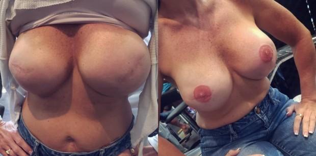 Catalano afirma que já fez mais de 300 tatuagens para vítimas de câncer de mama (Foto: Reprodução/Instagram)