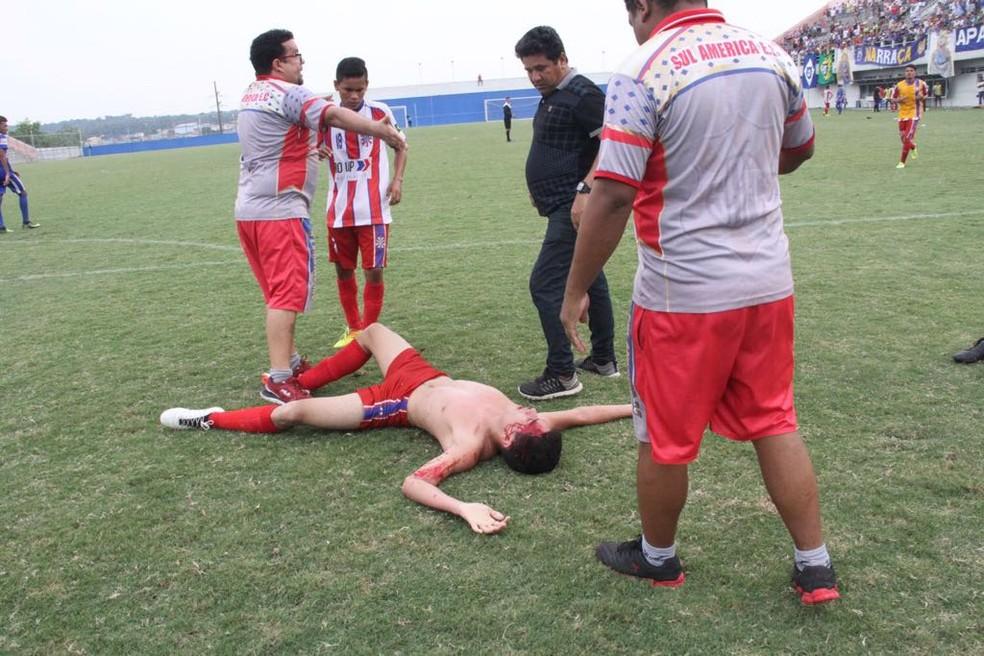 Jogador foi agredido após comemoração provocativa (Foto: Divulgação)