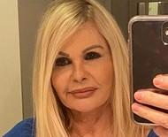 """Monique Evans adere à harmonização facial: """"Muito feliz com o resultado"""""""