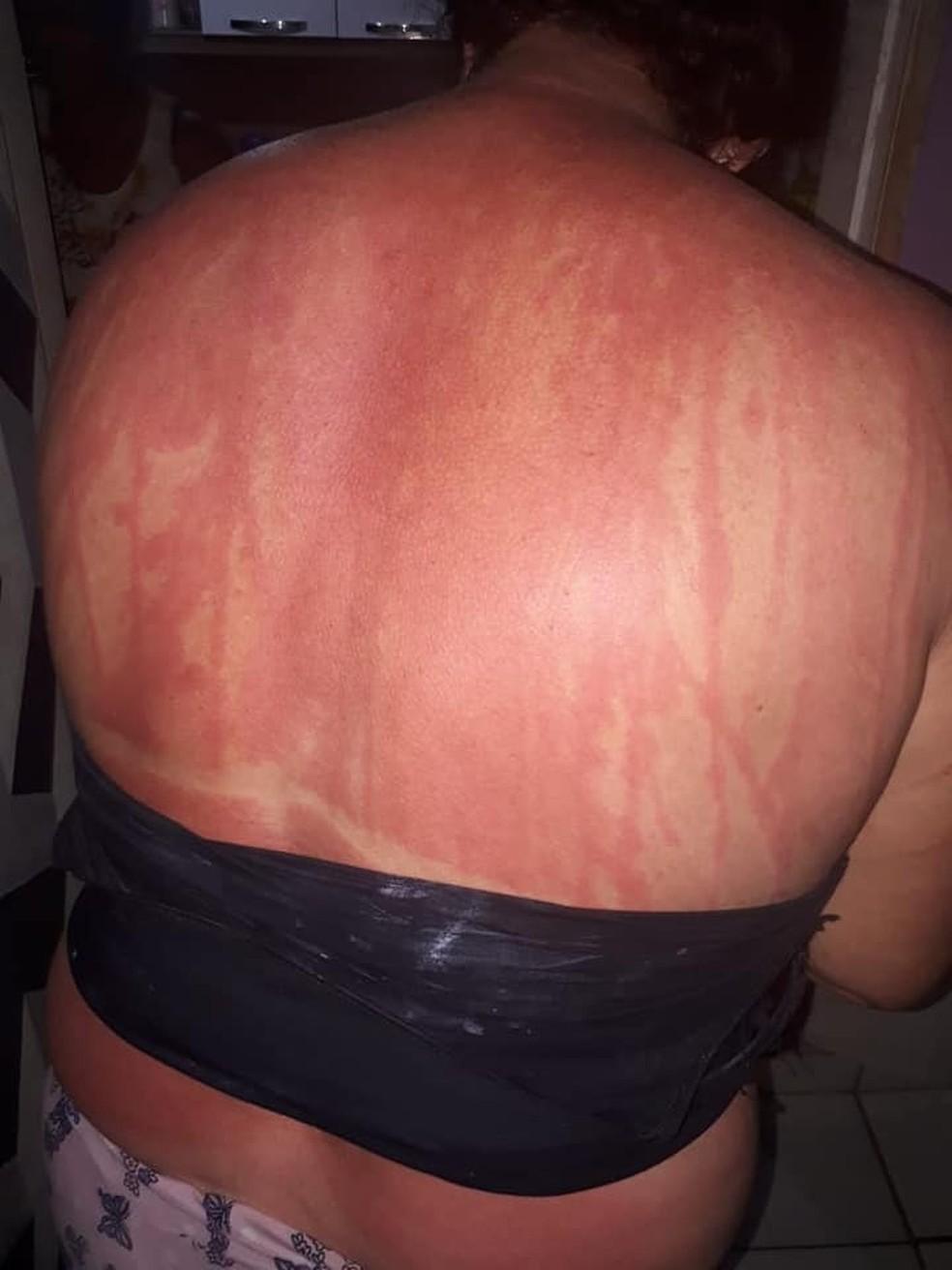 Mulher se bronzeou com chá de folha de figo. â?? Foto: Arquivo Pessoal