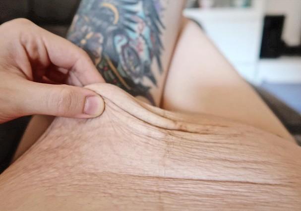 Laura mostra a barriga após o parto (Foto: Reprodução)