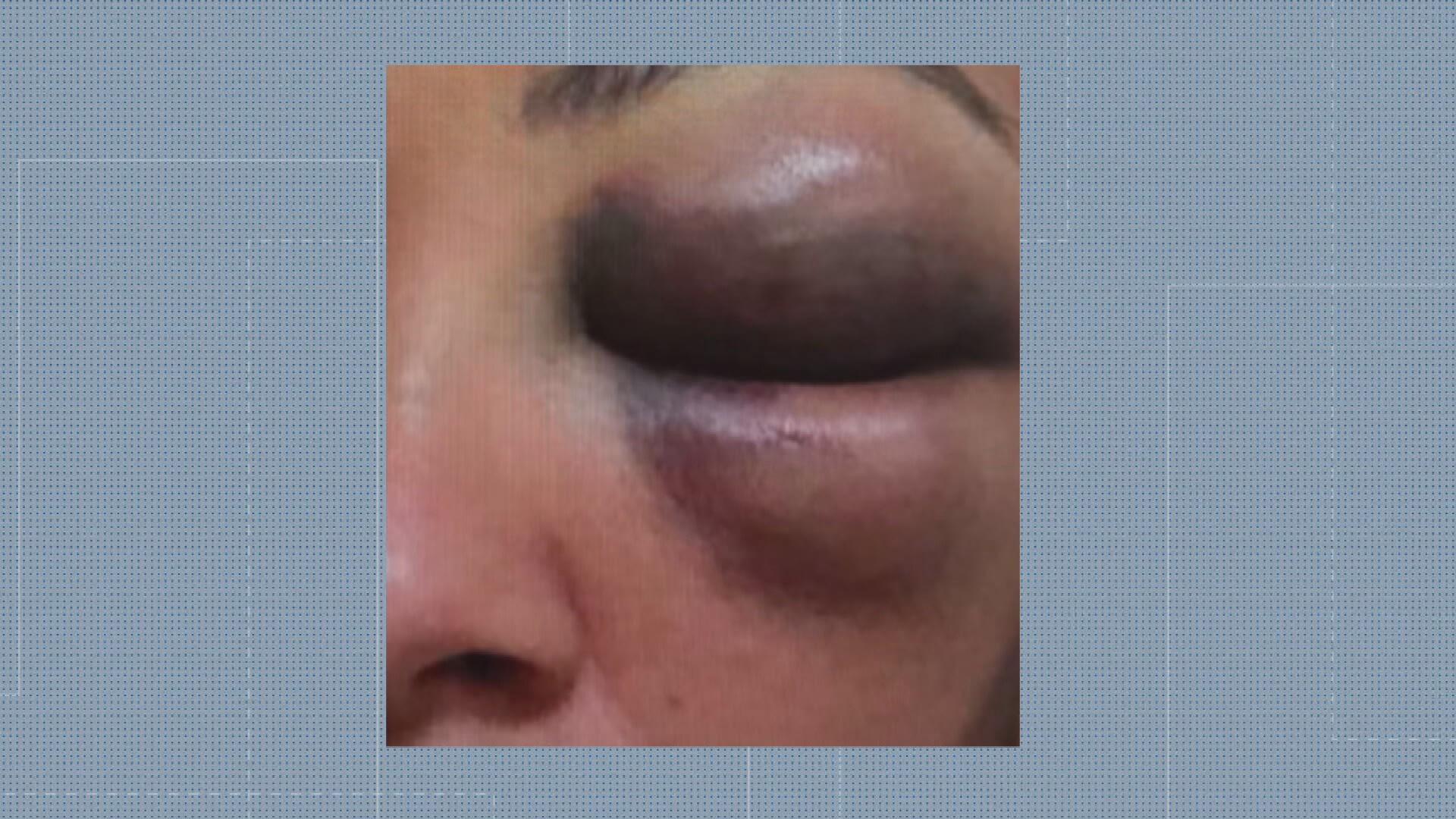 Lutador de artes marciais é preso por suspeita de agredir ex-namorada