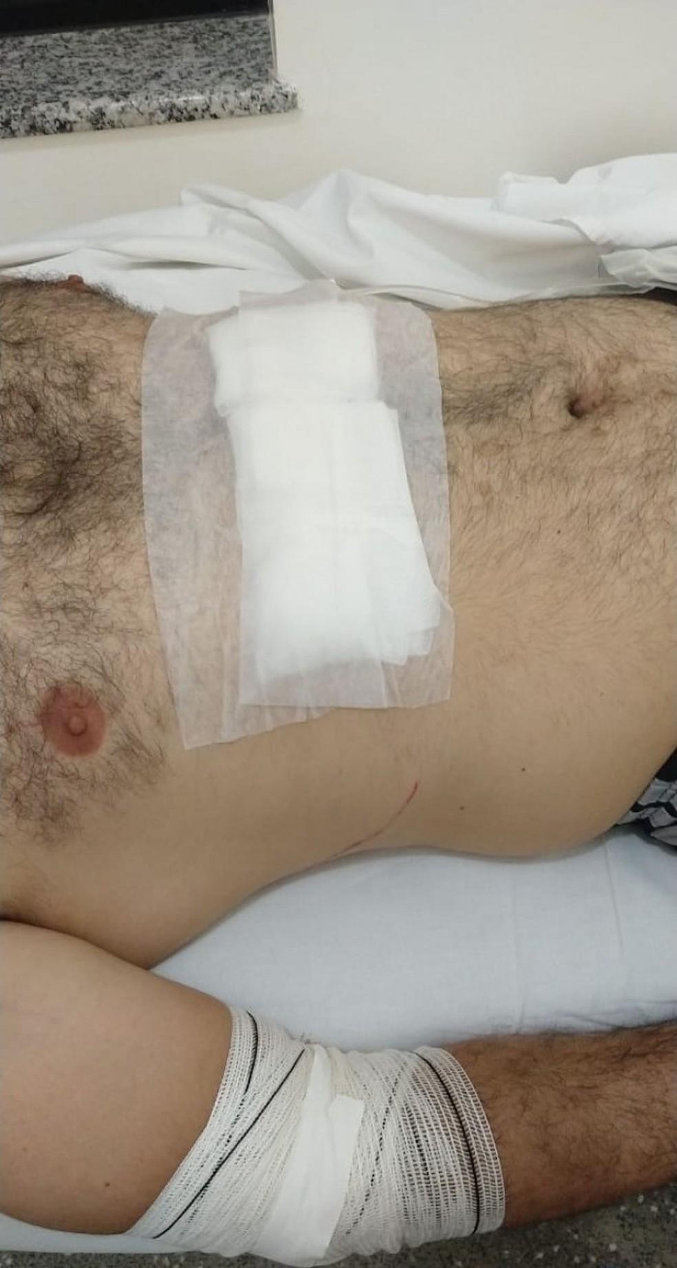 Ao tentar se defender, o PM acabou sofrendo cortes no braço, na perna e no abdômen — Foto: Arquivo pessoal