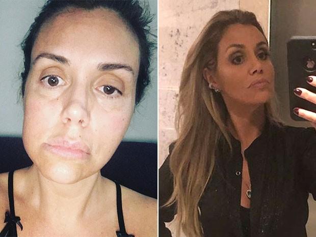 Antes e depois de Renata Banhara (Foto: Reprodução/Instagram)