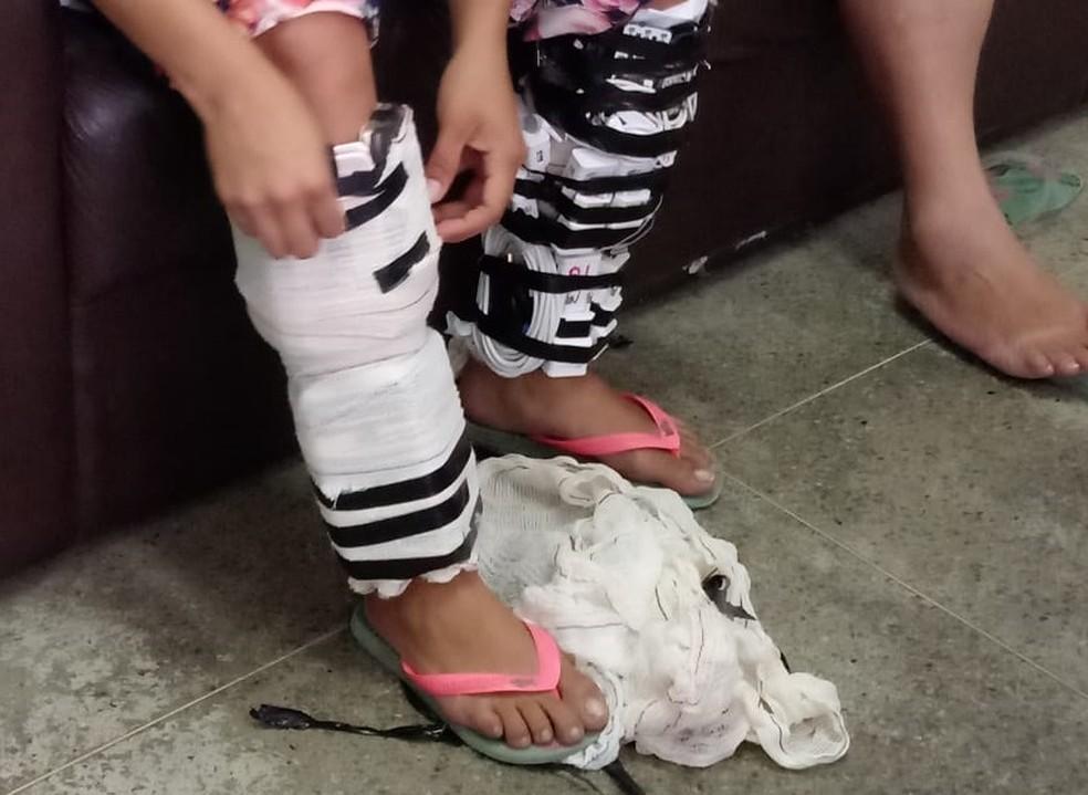 Mulheres prenderam celulares e carregadores às pernas para tentar entrar com material em presídio — Foto: Sejus/Divulgação