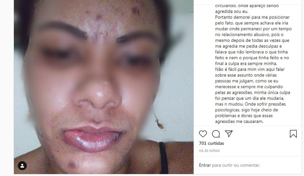 Franciele Azevedo fez reato nas redes sociais sobre agressão e relacionamento abusivo — Foto: Reprodução/ Redes Sociais