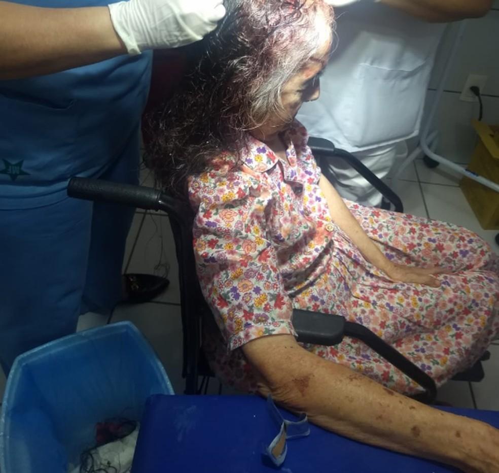 Idosa de 80 anos agredida por assaltantes que invadiram sua casa em Guaiúba. — Foto: (Foto: Divulgação)