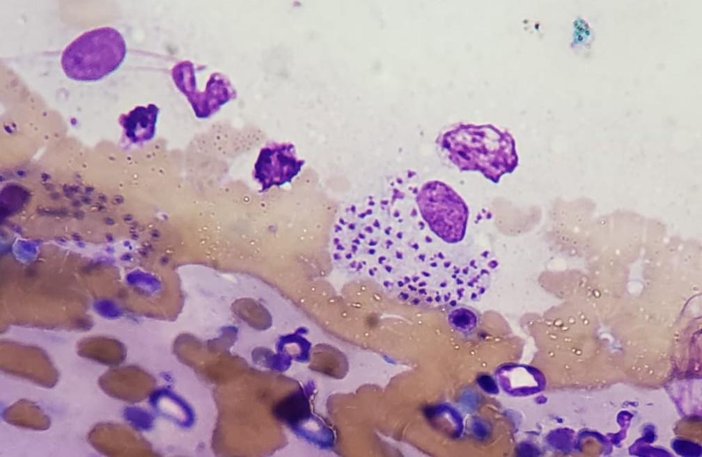 Parasita foi encontrado dentro da medula óssea de pacientes. — Foto: Divulgação