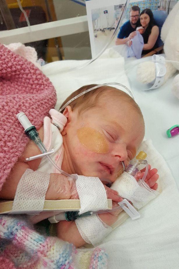 Harper nasceu com o cordão umbilical enrolado no pescoço (Foto: Reprodução/ Mirror Online)