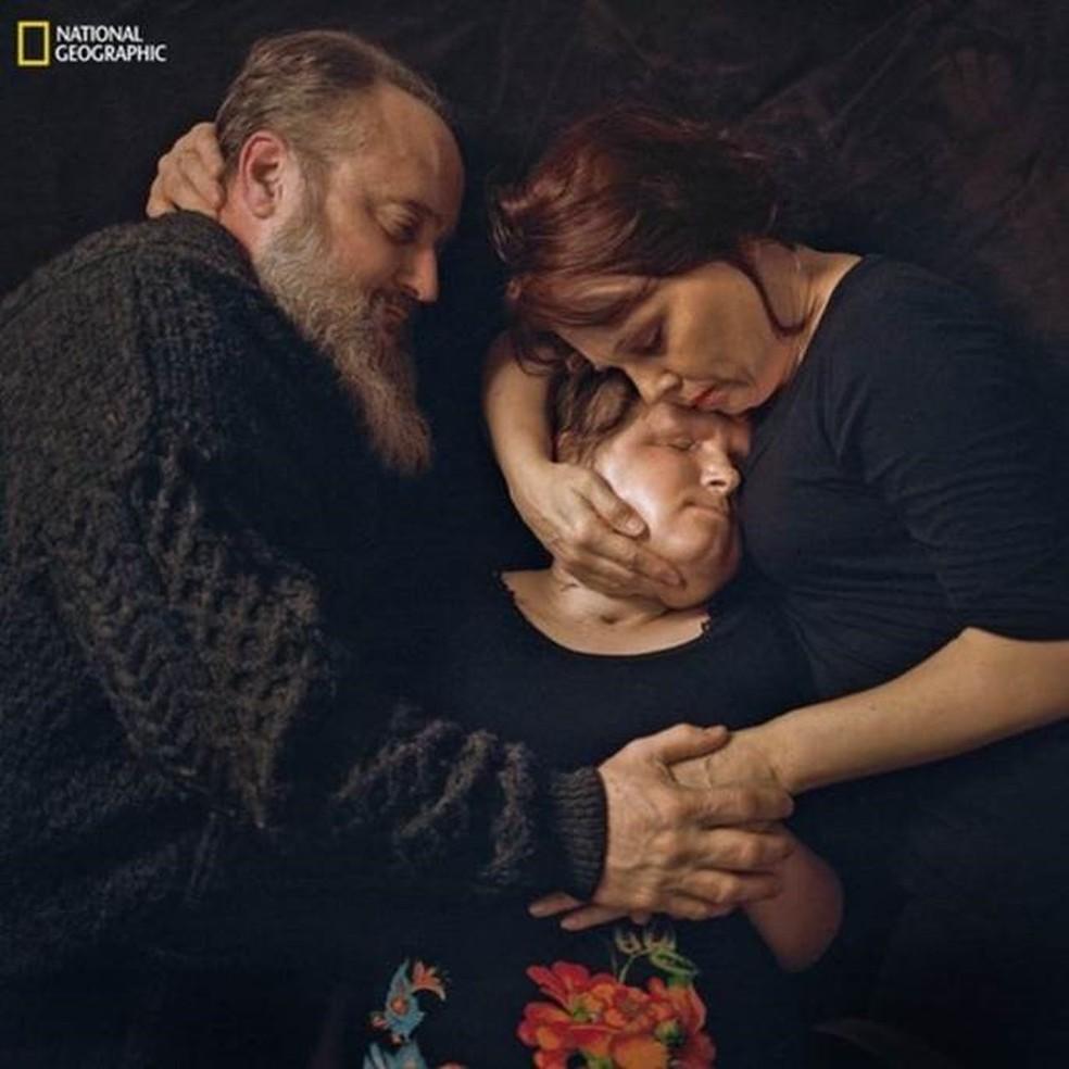 """Katie abraçada pelos pais, já com o novo rosto: """"segunda chance de vida"""", disse cirurgião (Foto: Maggie Steber/National Geographic)"""