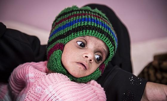 Iêmen: dois terços da população enfrenta insegurança alimentar