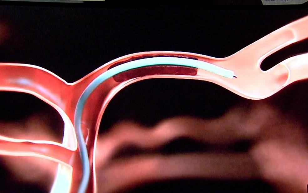 Microcateter é introduzido na artéria cerebral para retirada de coágulo  (Foto: Reprodução)