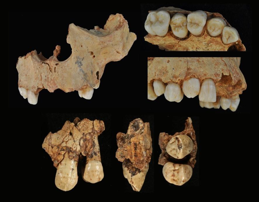 Restos de dentes analisados na pesquisa (Foto: Cenieh)