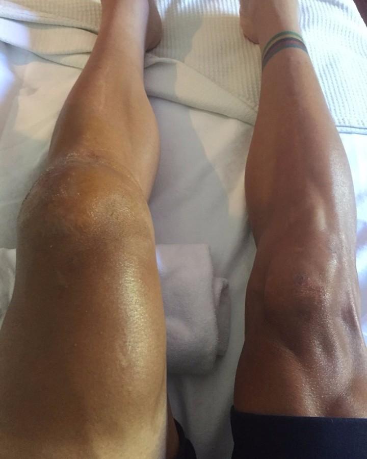 Ciclista lesiona joelho (Foto: Reprodução/Instagram)