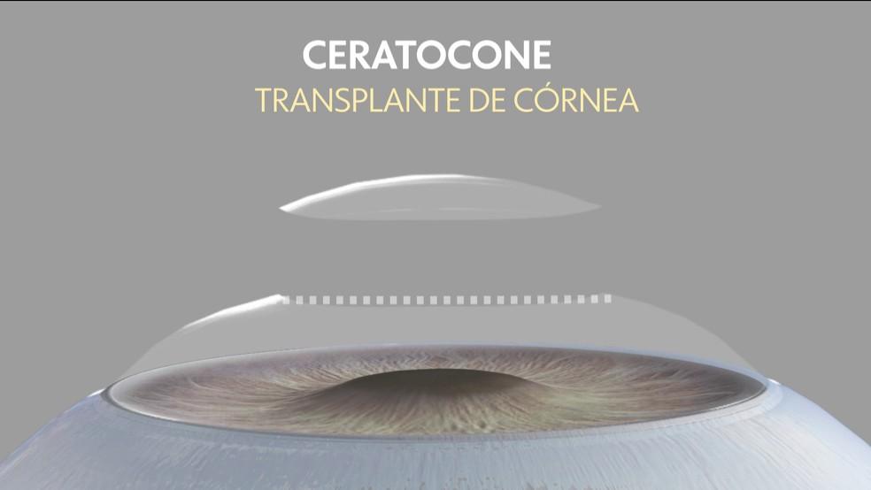 20% dos transplantes de córnea, feitos no Brasil, são por causa da doença, diz Conselho Brasileiro de Oftalmologia.