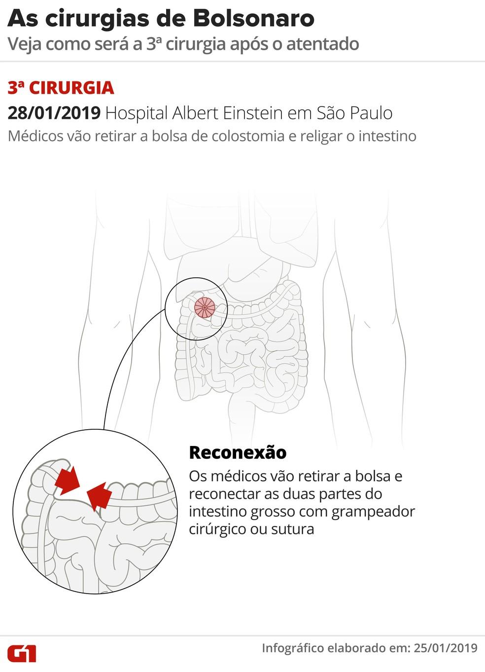 Veja como deverá ser a terceira cirurgia de Jair Bolsonaro — Foto: Alexandre Mauro/Editoria de Arte/G1