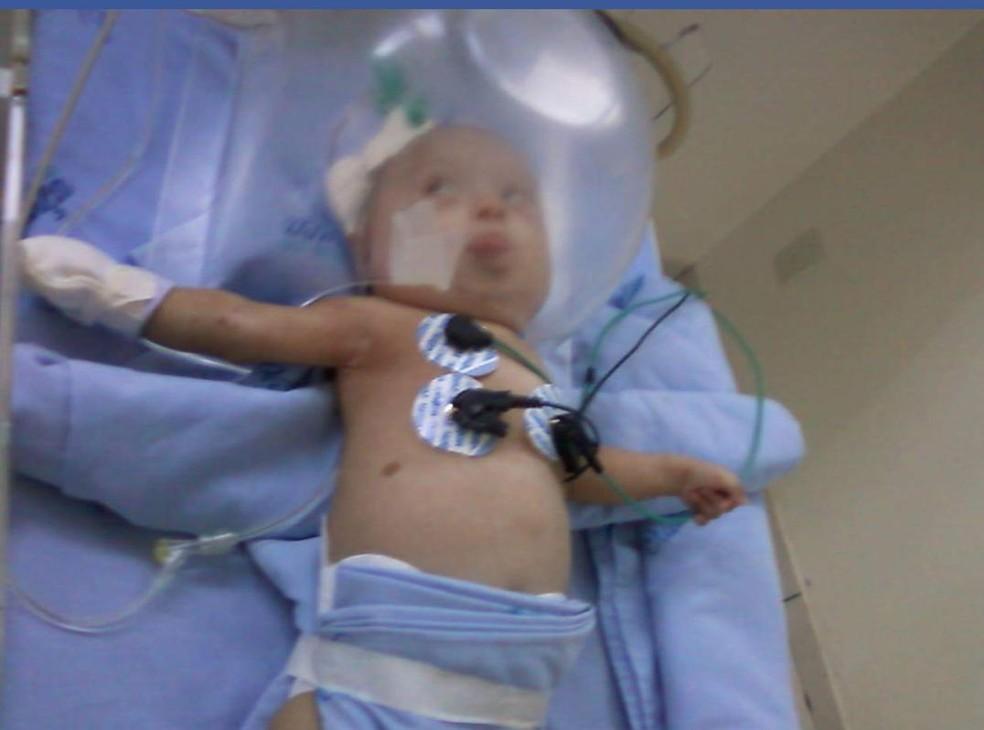 Quando nasceu, Alice Fagundes pesava só 1,8 kg e passou mais de 100 dias na UTI — Foto: Arquivo Pessoal