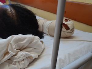 Mulher teve cortes na cabeça e pelo corpo (Foto: Aline Paiva/ G1)