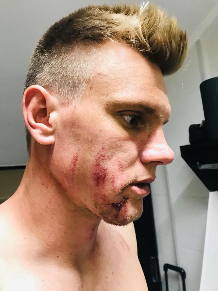 Veja como ficou o rosto do goleiro Douglas após ser atingido por Leandro Castán