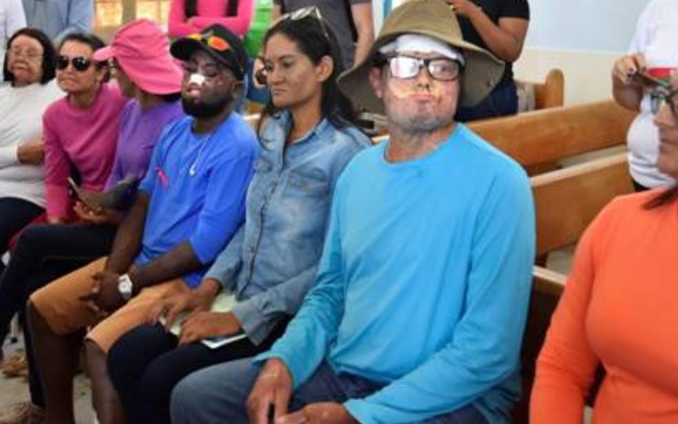 Hospital inaugura ambulatório para atendimento de pessoas com xeroderma pigmentoso, em Goiânia, Goiás — Foto: Divulgação/HGG