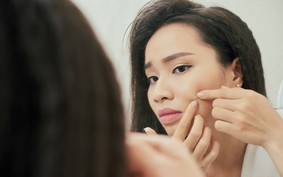 Acne e menstruação: como tratar a pele durante o ciclo