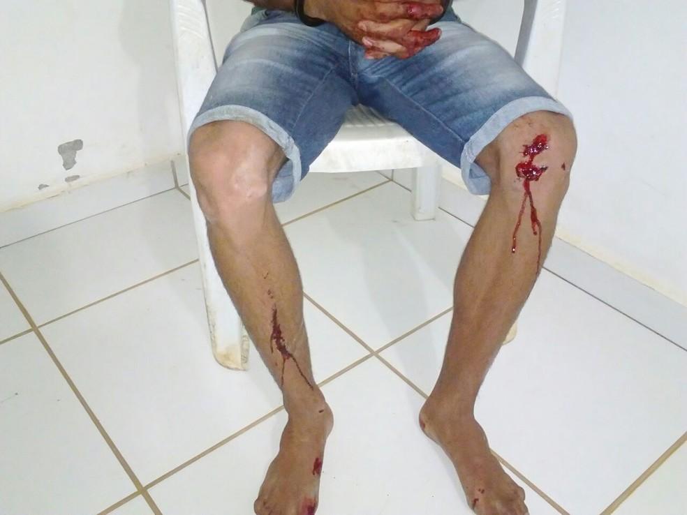 Suspeito foi encaminhado para a Unisp  (Foto: Machadinho190/Reprodução)