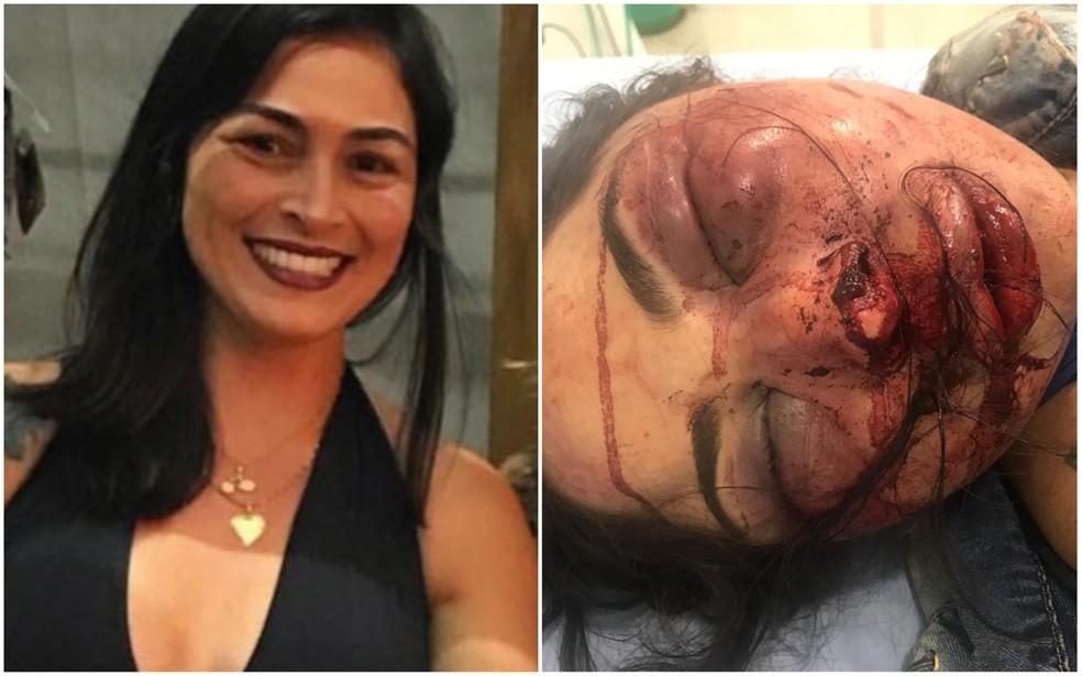 Imagem mostra antes e depois de vítima ser espancada no Espírito Santo — Foto: Divulgação/Rede Social e Polícia Militar