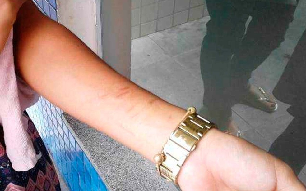 Marcas no braço da adolescente que foi estuprada em Feira de Santana; dono de empresa de dedetização foi preso suspeito do crime (Foto: Aldo Matos/Acorda Cidade)