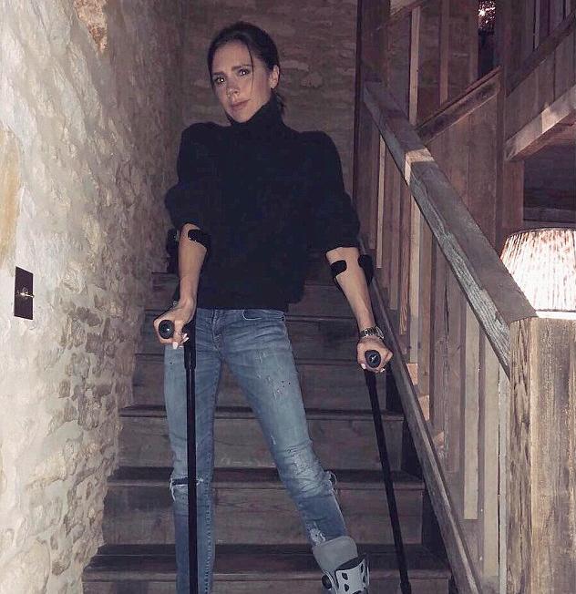 Uma foto da cantora Victoria Beckham ostentando seu pé quebrado (Foto: Instagram)