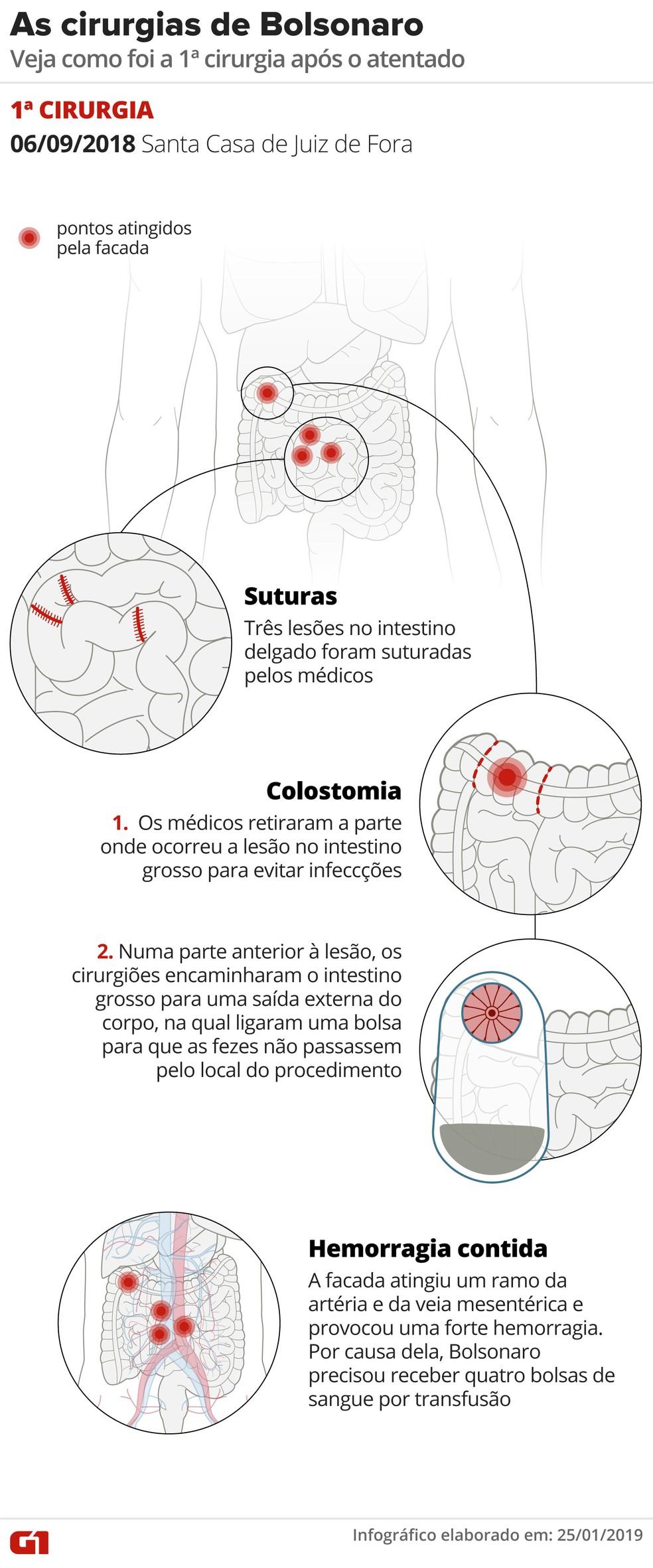 Arte mostra como foi a primeira cirurgia de Jair Bolsonaro — Foto: Alexandre Mauro/Editoria de Arte/G1