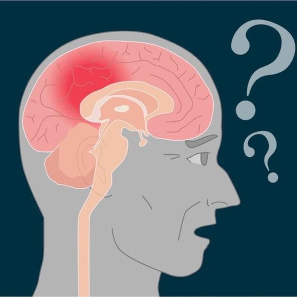 Doença de Alzheimer atinge região do cérebro que fixa as informações novas (Foto: Getty Images)