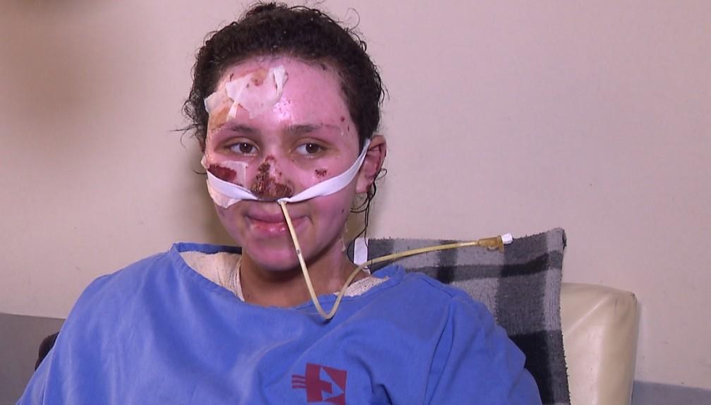 A adolescente Jackeline de Andrade, de 16 anos, queimou 60% do corpo ao resgatar o irmão em um incêndio â?? Foto: Reprodução/RPC