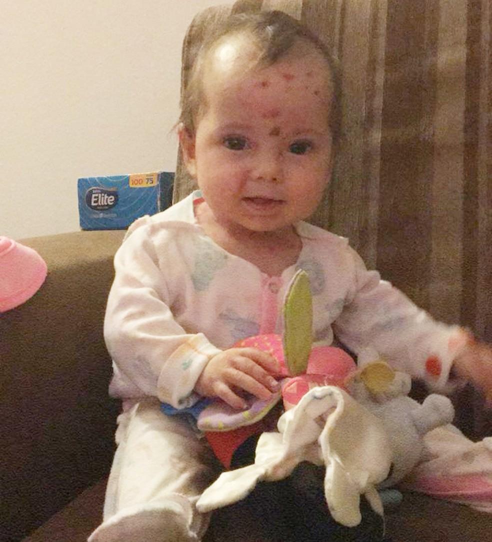 Tratamento de Nalu, de 10 meses, chega a custar R$ 30 mil mensais — Foto: Reprodução/Facebook