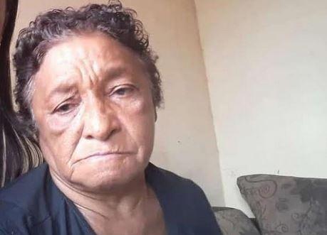 Após 20 dias internada, idosa que teve 80% do corpo queimado em explosão causada por gás de cozinha morre no AC