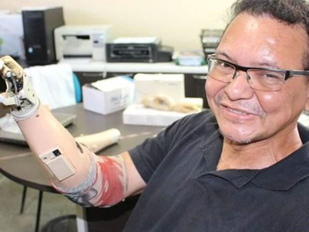 Ari Ribeiro com prótese de R$ 30 mil que ganhou de empresa; ele continua usando suas invenções, pois prótese tem apenas três dedos e não possui mobilidade no punho, algo que sua invenção de R$ 400 oferece  (Foto: Rafael Luis Azevedo/BBC)