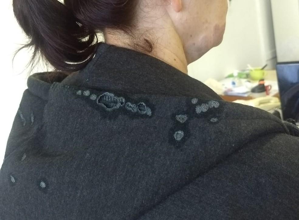 Vítima sofreu queimaduras em parte do rosto e pescoço após ataque com líquido corrosivo em Porto Alegre  — Foto: Arquivo pessoal