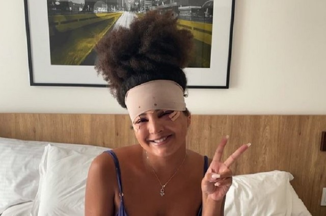 Gabriela Loran mostra edemas pós-cirúrgicos (Foto: Reprodução)
