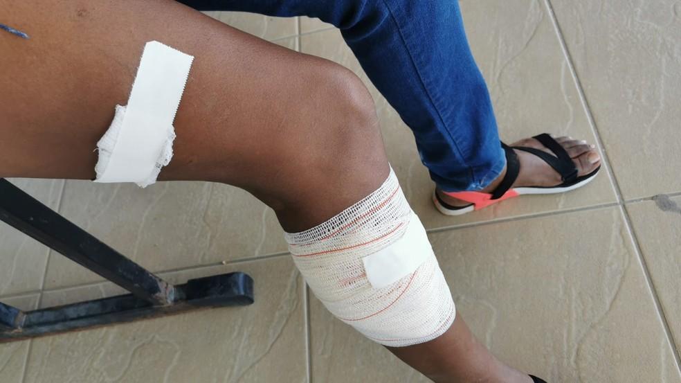 Mulher atacada por macaco é levada para hospital — Foto: Reprodução